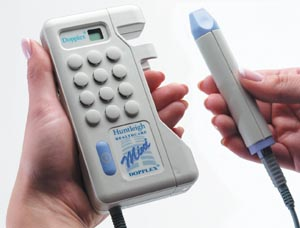 ARJO MINI DOPPLEX DOPPLER (WITHOUT DISPLAY) : D900USA/VP8HS EA $750.11 Stocked